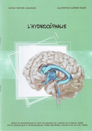 L'hydrocéphalie